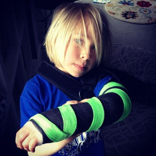 little girl arm cast instagram