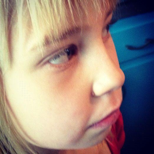 little girl zit instagram